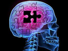 Alzheimer signos y señales de alerta