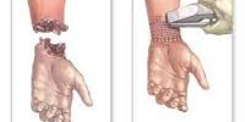 Amputacion aspectos generales del procedimiento