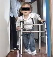 Ayudas para la marcha en la parálisis cerebral infantil