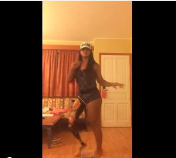 Chica baila samba con pierna ortopedica