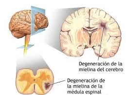 Cuidado de pacientes con esclerosis multiple