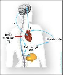 Disreflexia autonomIca pone riesgo vida de lesionados medulares
