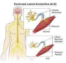 Esclerosis lateral amiotrofica definicion diagnostico y tratamiento