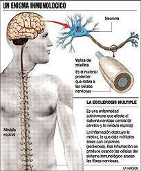 Esclerosis multiple preguntas habituales sobre la enfermedad