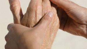 Fisioterapia en la Artritis Reumatoide