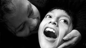 Habilitacion oral en paralisis cerebral