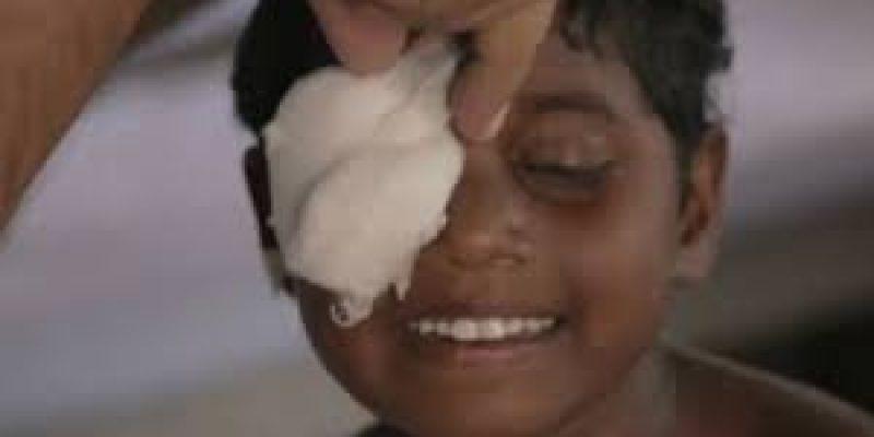 Hermanas ciegas ven por primera vez gracias a operacion