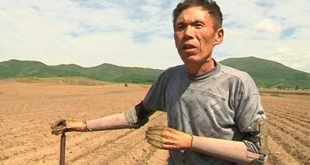 Chino crea sus propios brazos bionicos