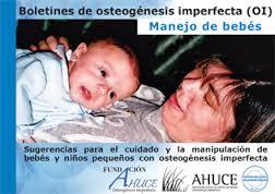 Manejo y cuidado de bebes con osteogenesis imperfecta