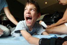 Paralisis cerebral infantil impacto emocional en padres