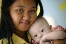 Pareja australiana rechaza bebé con Síndrome de Down