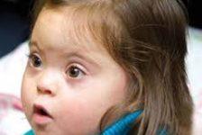 Síndrome de Down guia de evaluacion e intervencion