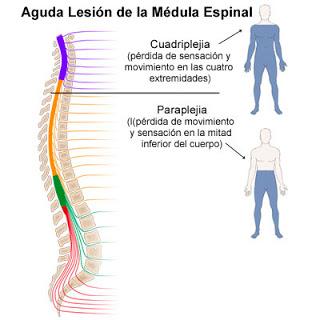 Tratamiento del paciente con lesion medular