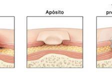 Ulceras por presion tratamiento limpieza y apositos