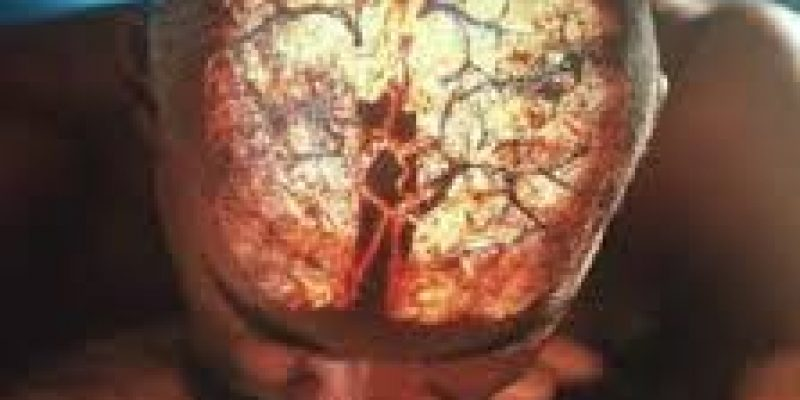 Ictus: Vida despues de un ataque cerebral