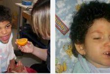 Alimentacion en parálisis cerebral infantil, suplementos y fórmulas