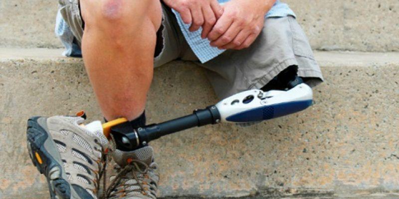 Amputación de pierna por encima de la rodilla