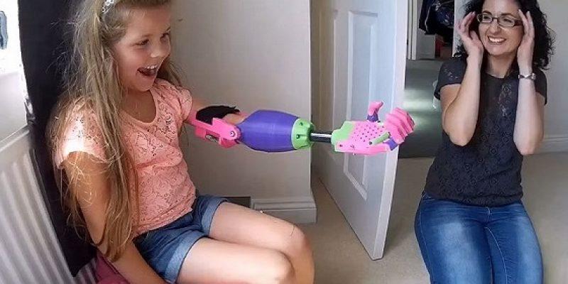 Reacción de niña al recibir prótesis de brazo 3D