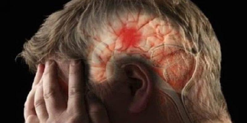 Causas de un derrame cerebral