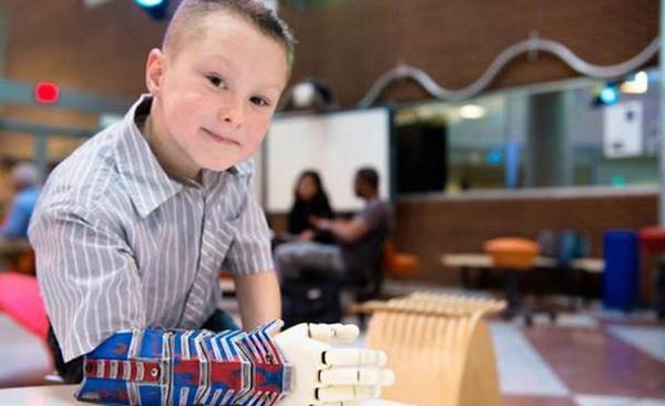 Empresa crea brazos bionicos para niños