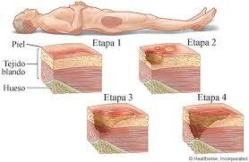 Prevencion y cuidados de ulceras por presion