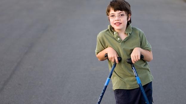 Espasticidad en la paralisis cerebral