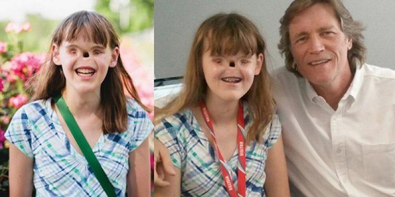 Cassidy la joven que nacio sin ojos y sin nariz