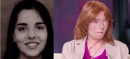 Historia Jacqueline Saburido y el accidente que cambio su vida