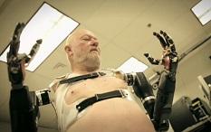 El hombre de los brazos bionicos