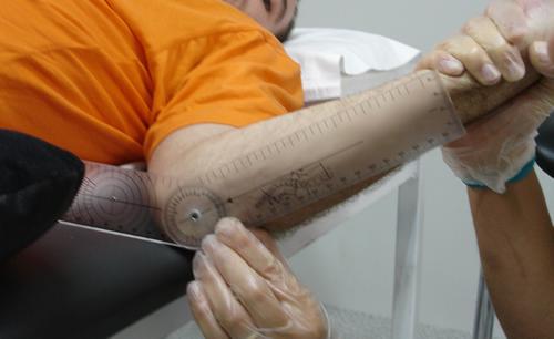 Lesion medular y manejo de la espasticidad