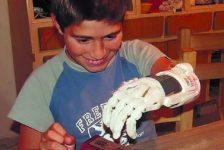 Niño recibio mano creada con impresora 3D