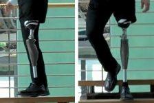 En España presentan nuevas prótesis biónicas